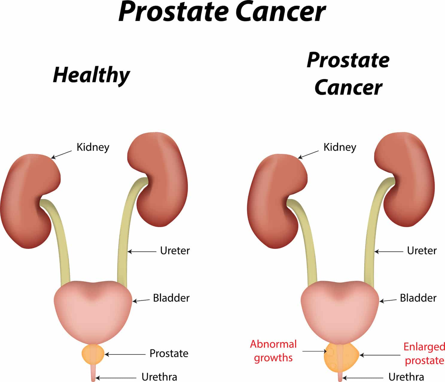 Multivitamin use may reduce prostate Ca recurrence